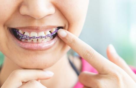 Aparat ortodontyczny, a prawidłowe połykanie